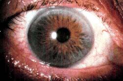 misdirected eyelashes