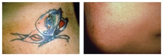 tattoo-full9